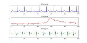 Time series features extraction using Fourier and Wavelet transforms on ECG data